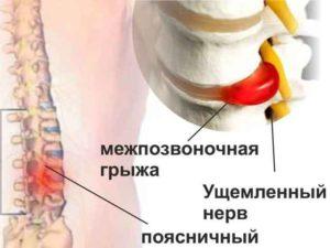 Профилактика и лечение грыжи позвоночника